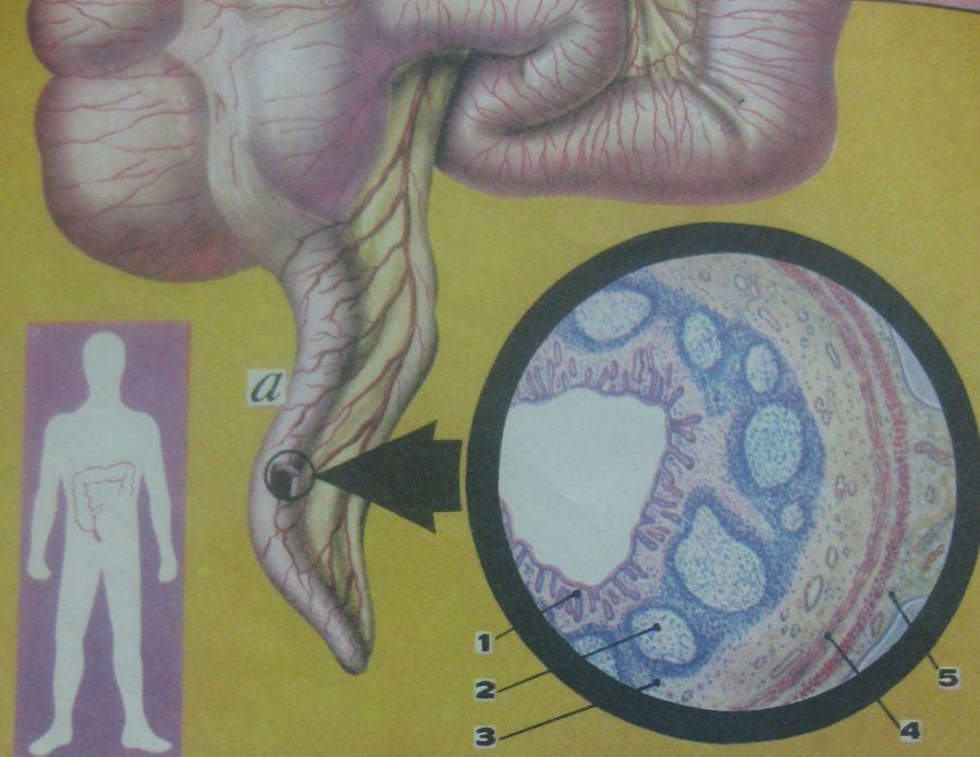Микрополости при аппендиците