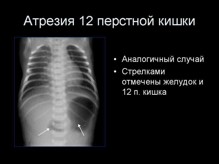 Атрезия 12-перстной кишки