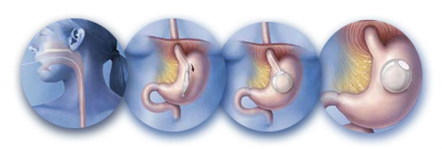 Баллонирование желудка