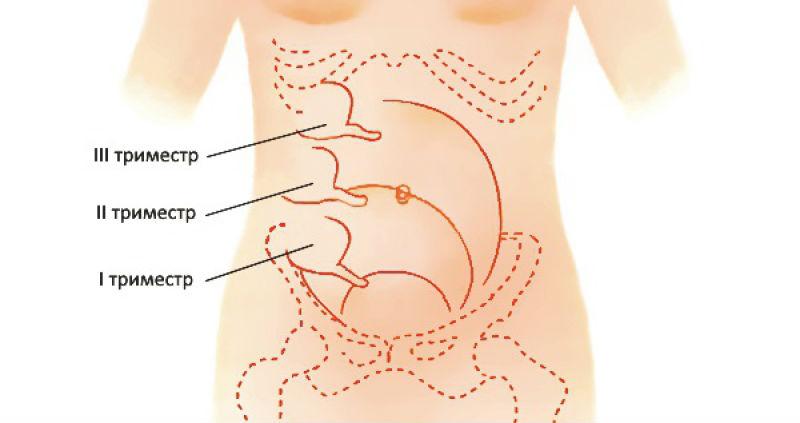 Расположение аппендикса при беременности
