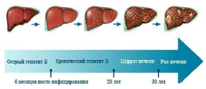Переход гепатита в цирроз
