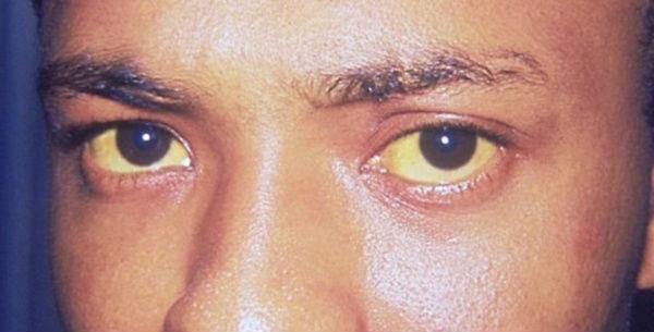Желтизна кожи и склер