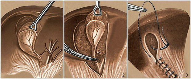 Лапароскопия желчного пузыря