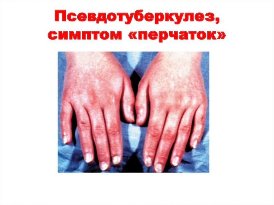 Симптом перчаток