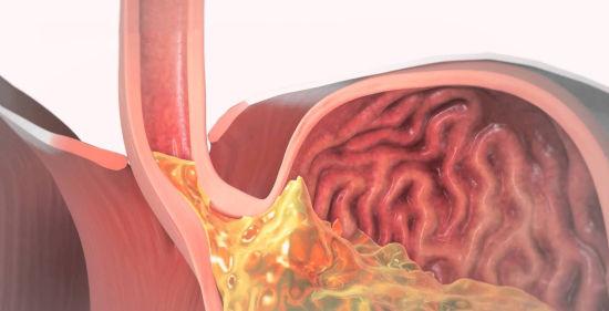 Заброс желудочного сока в пищевод