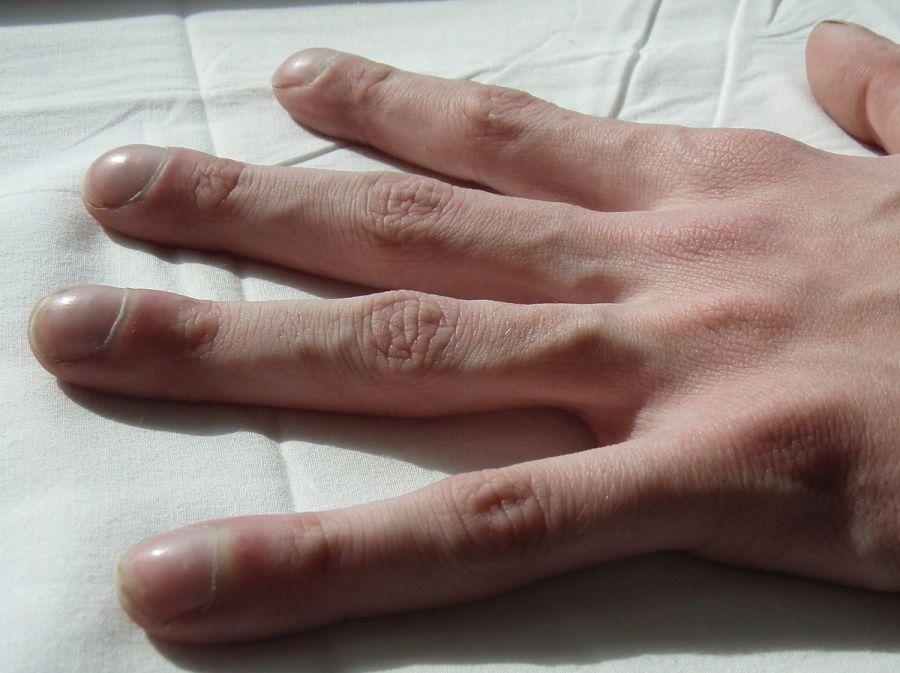 Пальцы при муковисцидозе