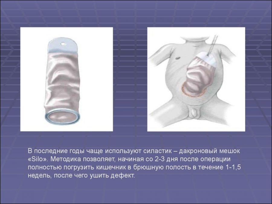 Операция при омфалоцеле