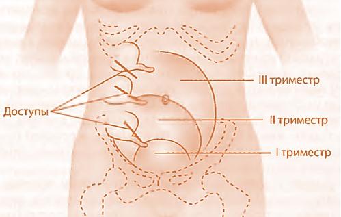 Локализация аппендикса при беременности