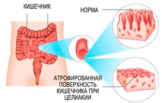 Атрофия клеток слизистой кишечника