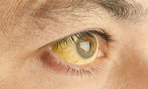 Желтизна склер
