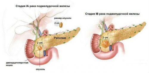 Муцинозная аденокарцинома поджелудочной железы thumbnail