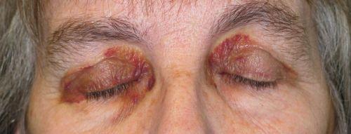 Кровоизлияния на глазах