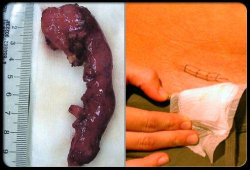 Воспаление аппендикса