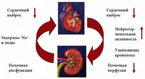 Механизм развития асцита