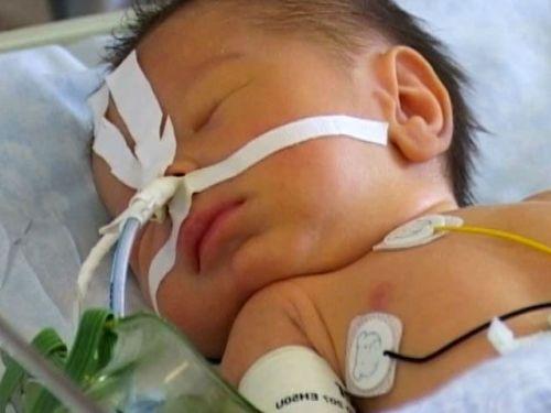 Кормление ребенка через носовой зонд
