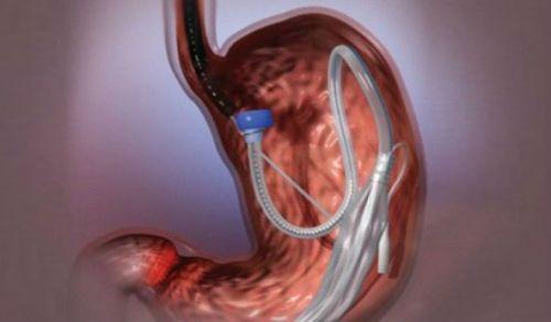 Введение баллона в желудок