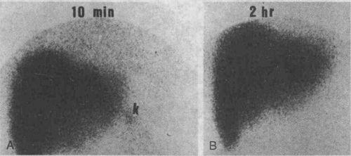 Радиоизотопные исследования печени