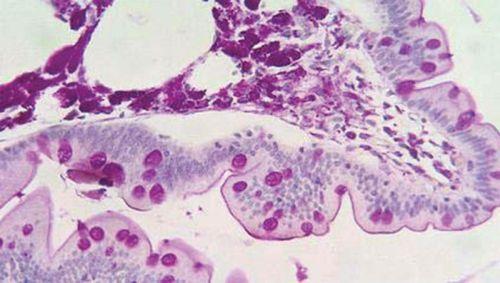 Гистология при болезни Уиппла