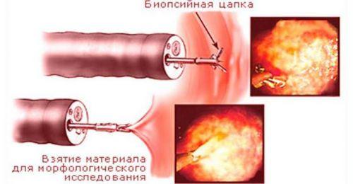 Биопсия