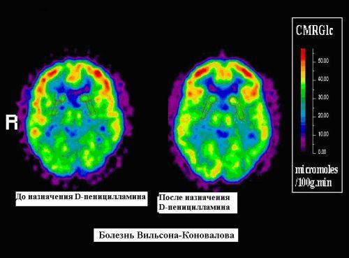 МРТ при болезни Вильсона-Коновалова