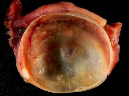 Удаленный яичник с кистой
