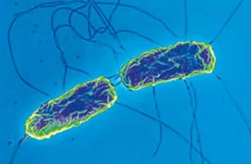 Сальмонелла брюшного тифа