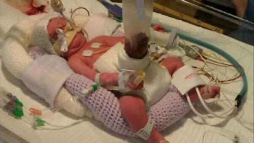 Новорожденный с гастрошизисом