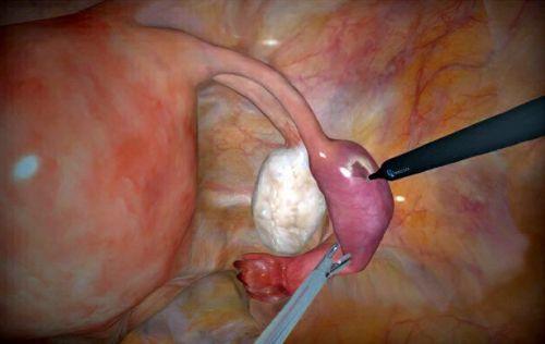 Удаление внематочной беременности