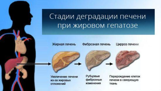 Стадии ожирения печени