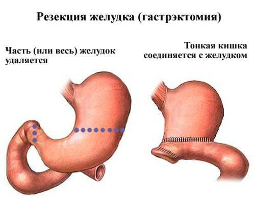 Резекция желудка