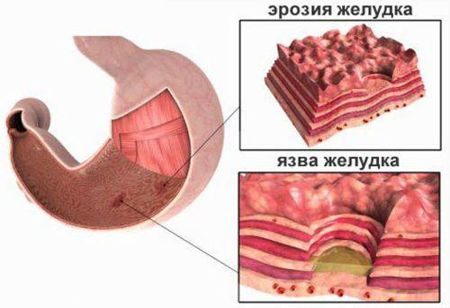 Эрозии желудка