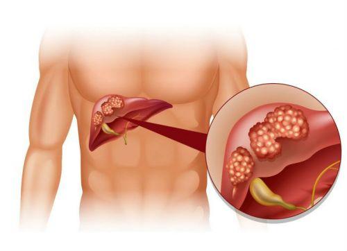 Гипомоторная дискинезия желчного пузыря и желчевыводящих путей, лечение гипотонического типа