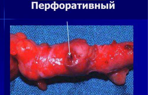 Перфоративный аппендицит