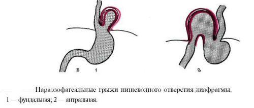 Параэзофагеальные грыжи