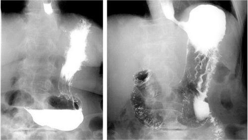 Рентген грыжи желудка