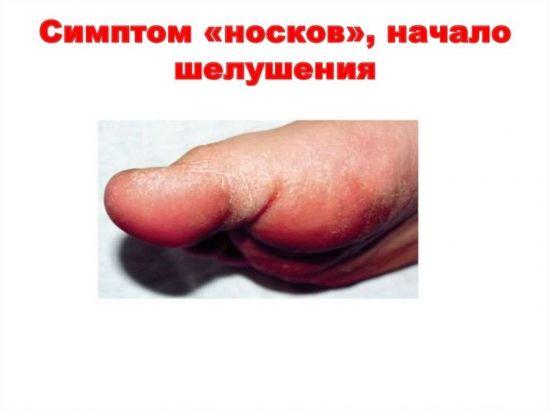 Симптом носков