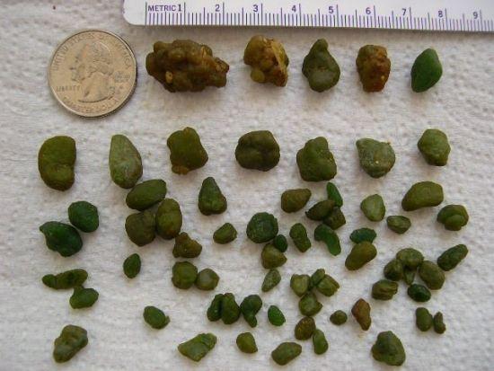 Камни из печени