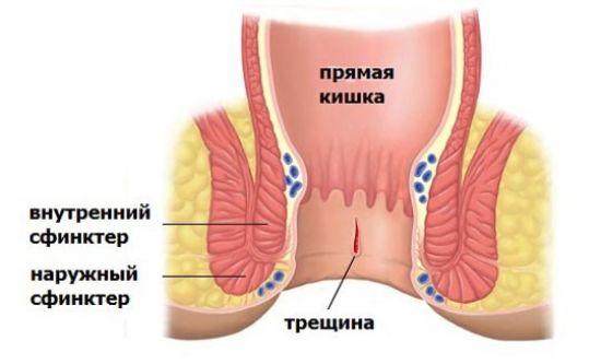 Трещины прямой кишки