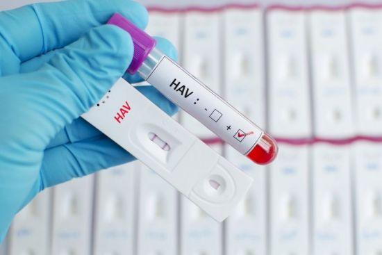 Анализы на гепатит С