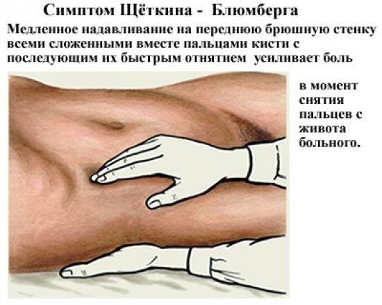 Симптом Щеткина-Блюмберга