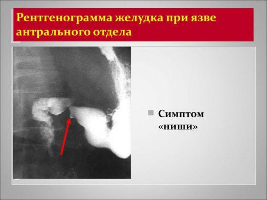 Рентген желудка при язве