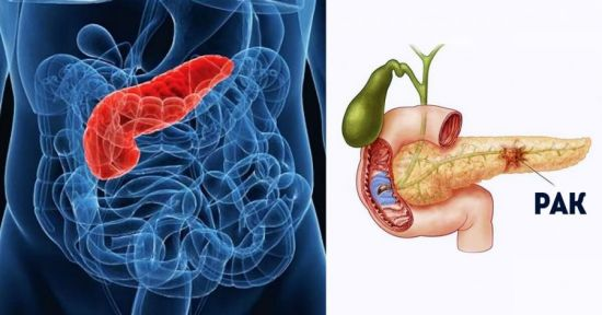 Рак протоков поджелудочной железы