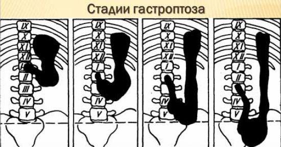 Стадии гастроптоза