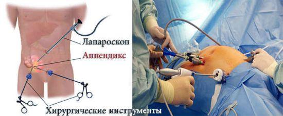 Лапароскопия аппендицита