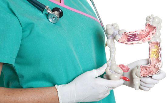 Макет кишечника в руках доктора