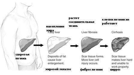 Развитие цирроза