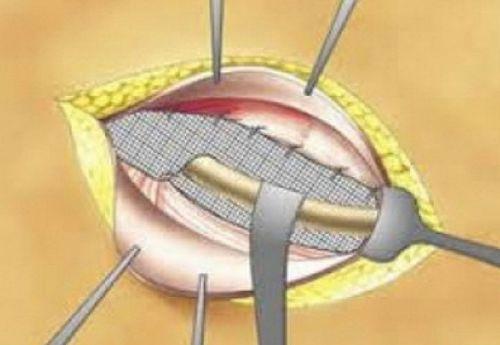 Расхождение внутренних швов после операции грыжи симптомы thumbnail
