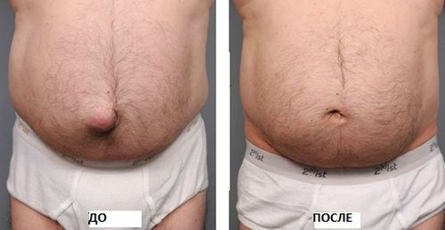 Грыжа до и после операции