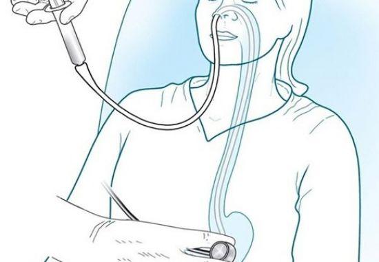 Зондовое промывание желудка