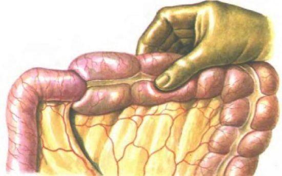Ревизия кишечника